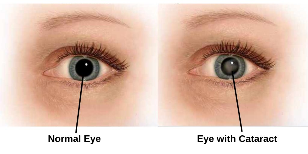 how to tell difference between cataract and normal eye
